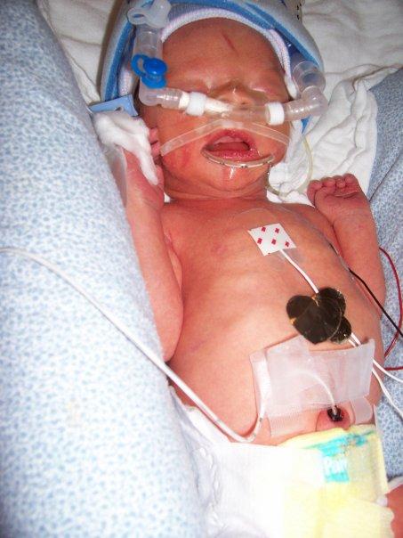 Premature Birth Bracston